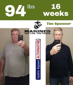 "From 262 lbs man to 168 lbs healthy fit and masculine in 16 weeks without surgery. Tim used the Gastric Bypass ALTERNATIVE regimen which claims to be ""Cheaper, safer and better than any weight loss surgery"". His cost, only $12 per lb lost."