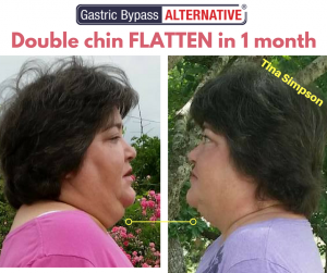 """Tina Simpson lost double chin and """"cured"""" from obesity using Don Karl Juravin's Gastric Bypass NO surgery"""