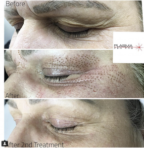 Eyebrow and Eyelid Lift Before and After by Plasma Pen Pro (PPP)