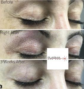 Plasma Pen eyelid lift and upper eye lid  lift by rose cruz