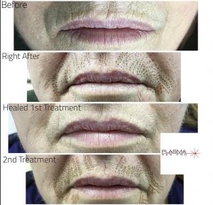 Plasma Pen Upper Lip Line Removal by Plasma Pen Pro